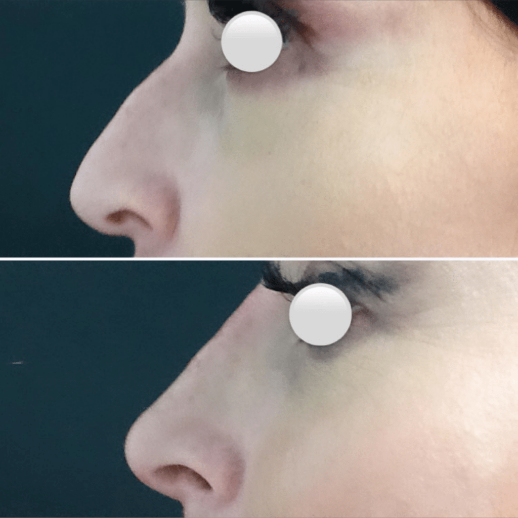 remodelado-nasal-medicina-estetica-granada-antes-despues