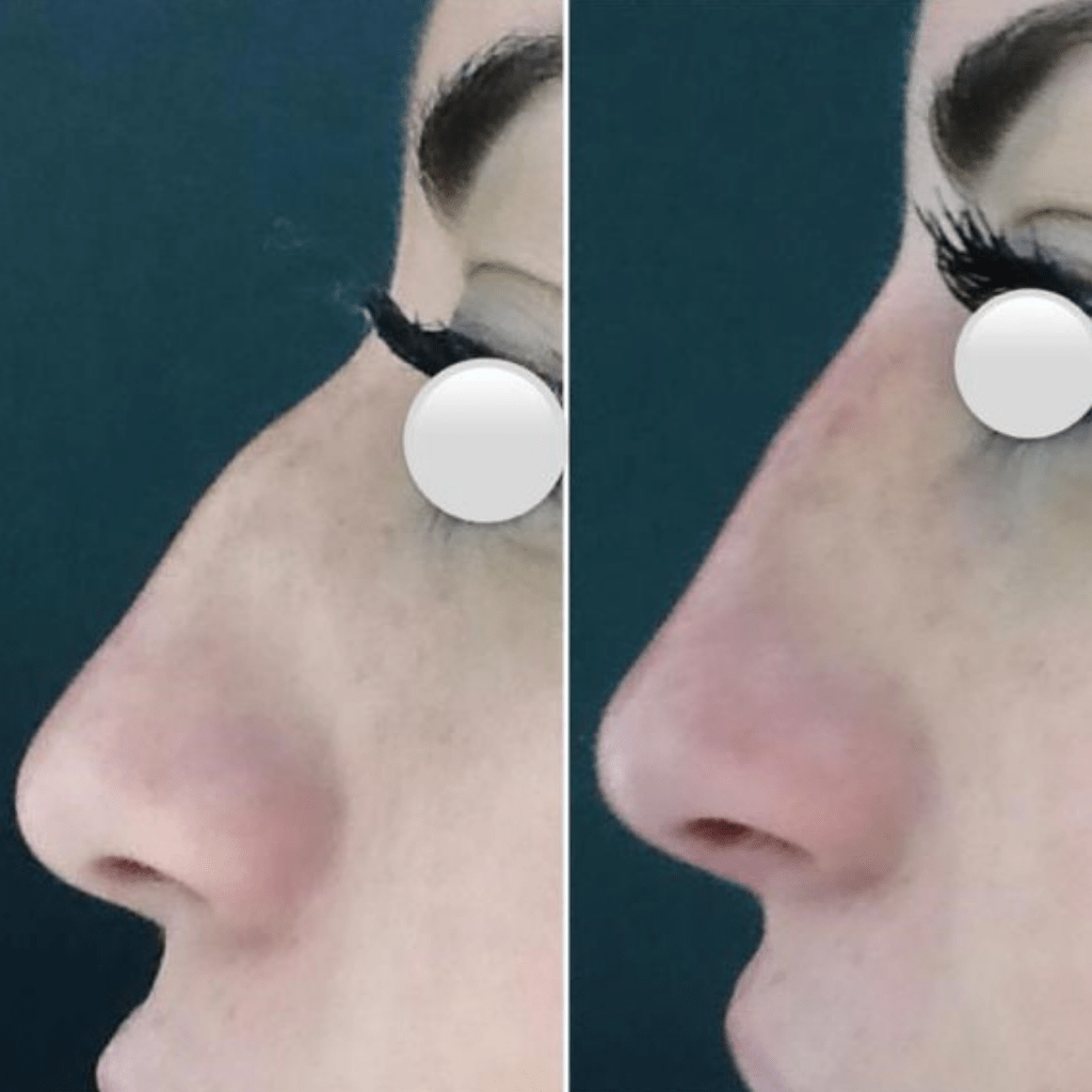 rinomodelacion-sin-cirugia-antes-despues