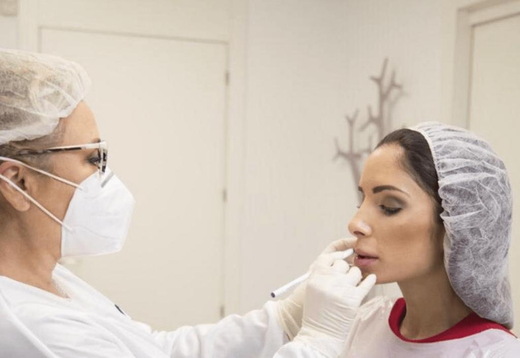 Eliminar-arrugas-labio-superior-codigo-de-barras-sin-cirugia