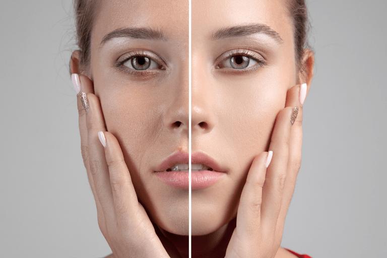 total-face-Full-face-medicina-estética-granada
