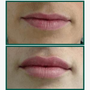 aumento-labios-acido-hialuronico-antes-despues