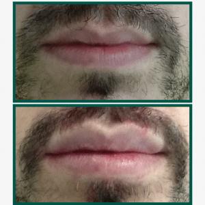 aumento-labios-hombre-antes-despues