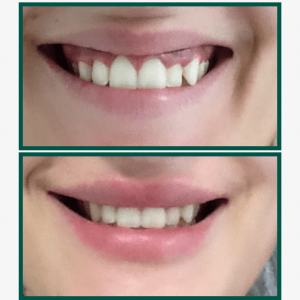 sonrisa-gingival-antes-despues