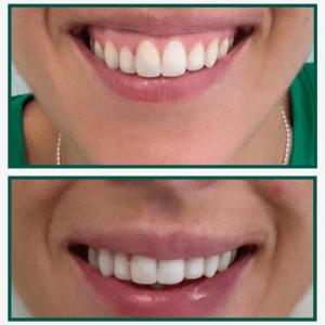sonrisa-gingival-acido-hialuronico