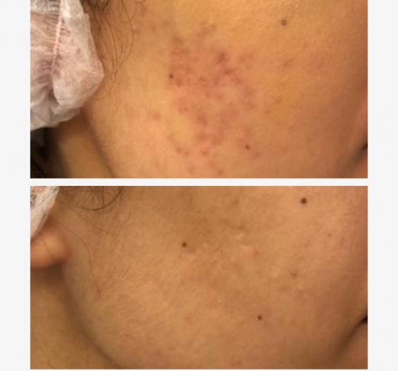 eliminar-cicatrices-acne-resultados-granada
