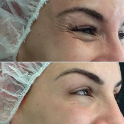 botox-elevación-cola-ceja-antes-despues