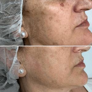Eliminar-manchas-faciales-ipl-antes-despues